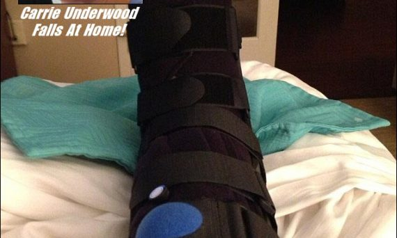 Country music star Carrie Underwood hurts herself in fall at Nashville home. Pic is NOT of her actual injury.